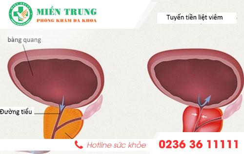 phương pháp hỗ trợ điều trị viêm tuyến tiền liệt ở nam giới